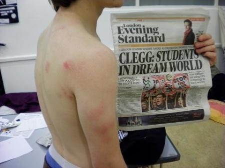 injured student