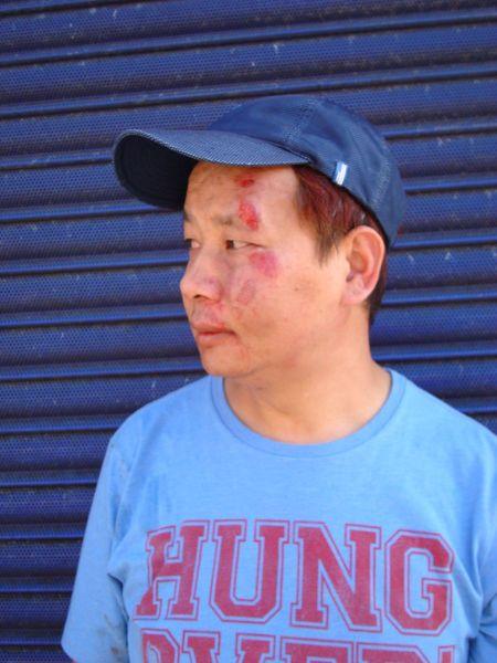victim of violent assault in Aldershot