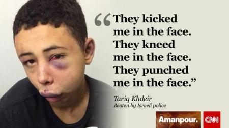beaten Palestinian boy
